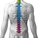 Whiplash Injury - Back & Neck Pain