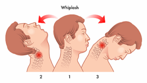 Stages of a Whiplash Injury